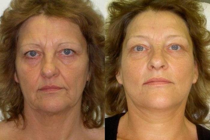 фотоомоложение кожи до и после